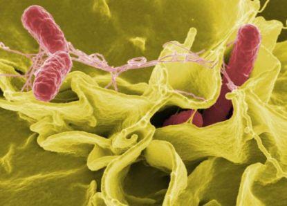344465 siod salmonella 04 Choque séptico: o que é?