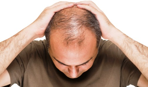 344729 cabelo Cirrose: entenda os riscos e o tratamento