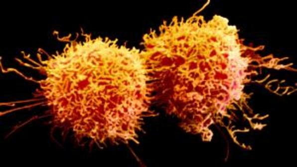 352750 Celulas cancerigenas size 598 Cientistas pesquisam vacina para vários tipos de tumores