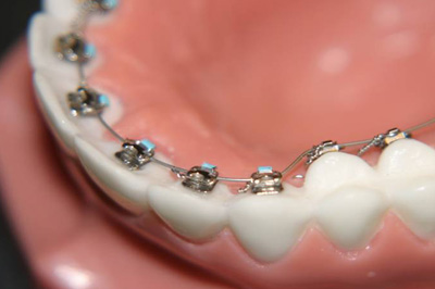 357166 aparelhos odontologicos modelos 1 Aparelho odontológico, modelos de aparelhos