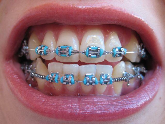 357166 aparelhos odontologicos modelos 2 Aparelho odontológico, modelos de aparelhos