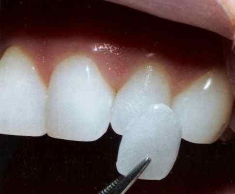 363784 l1 Conheça as lentes de contato para dentes
