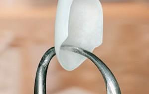 Conheça as lentes de contato para dentes