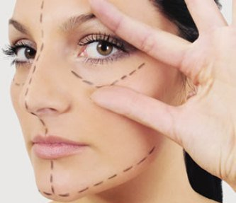 363901 cicatriz 4 Formas de evitar cicatrizes após cirurgia plástica