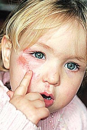372785 Celulite infecciosa 1 Celulite infecciosa: o que é, como tratar