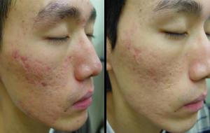Plástica para cicatrizes de acne