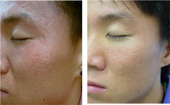 372921 Plástica para cicatrizes de acne 2 Plástica para cicatrizes de acne