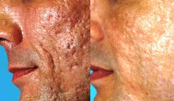 Tratamento de raio laser de borbulha de acne e acne