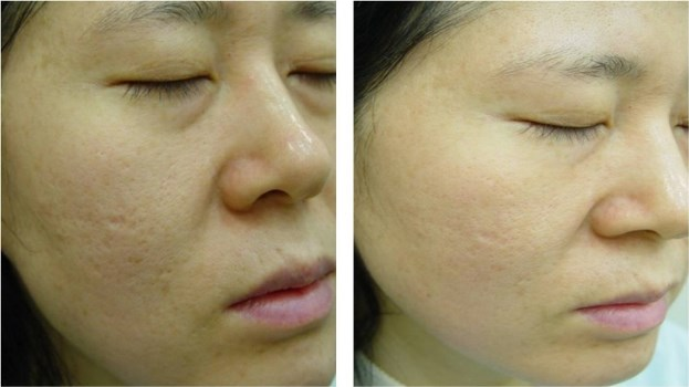 372921 Plástica para cicatrizes de acne 5 Plástica para cicatrizes de acne