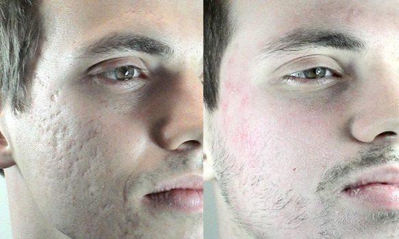 372921 foto 17 Plástica para cicatrizes de acne
