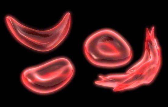 374144 34022629 Anemia falciforme   o que é, tratamento