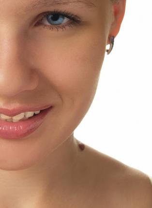 374960 os perigos dos remedios para verrugas 60 301 Como acabar com as verrugas