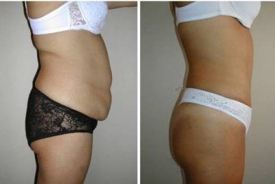 376276 abdominoplastia cirurgia clinicas 2 Abdominoplastia   Cirurgia, clínicas