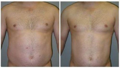 376276 abdominoplastia cirurgia clinicas 3 Abdominoplastia   Cirurgia, clínicas