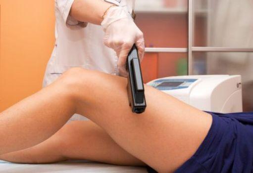380816 Tratamento contra estrias conheça os principais 1 Tratamento contra estrias: conheça os principais