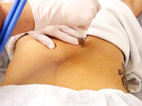380816 Tratamento contra estrias conheça os principais 2 Tratamento contra estrias: conheça os principais