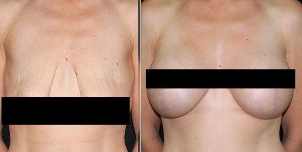Tosse depois de aumento em um peito