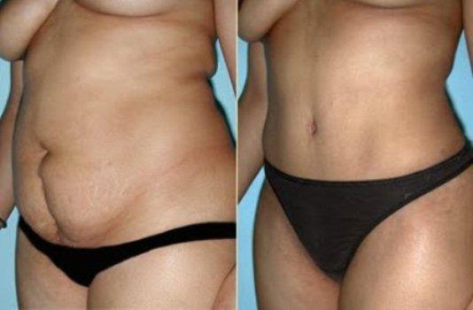 384250 dermolipectomia antes depois Cirurgias plásticas depois da redução de estômago