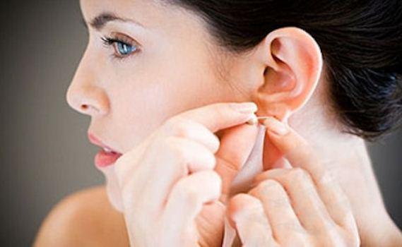 386892 cirurgia orelha abano Cuidados ao furar a orelha
