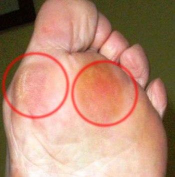 390777 Calos nos pés como eliminar dicas 2 Calos nos pés: como eliminar, dicas