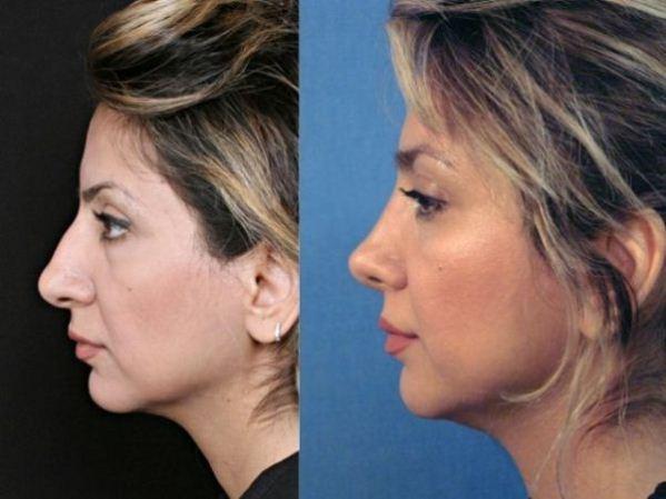 400890 A rinoplastia melhora a aparência do nariz Pequenas correções com cirurgia plástica