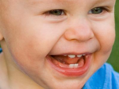 407056 Como aliviar a dor de dentes em bebês 3 Como aliviar a dor de dentes em bebês