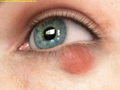 408916 Cuidados com o Ter%C3%A7ol Terçol: sintomas, como tratar