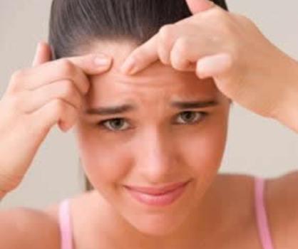 419208 acne1 Acne nas costas: como tratar, dicas