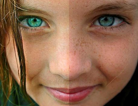 Como retirar lugares de pigmentary de uma cara durante a gravidez