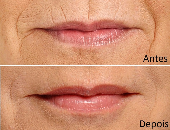 425592 Os resultados são rápidos e muito naturais Rugas ao redor dos lábios: o que fazer
