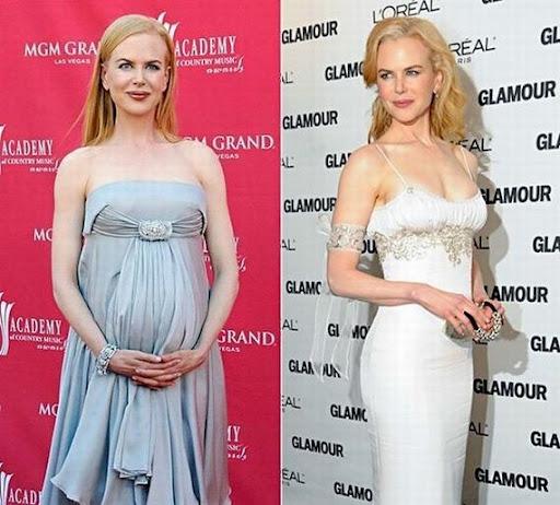 425816 celebridades gravidas nicole kidman Famosas que engravidaram depois dos 40 anos