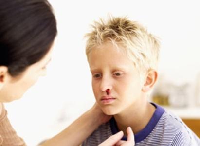 429535 1 Hemofilia: o que é, como tratar