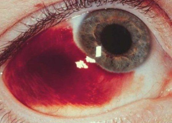 434765 O derrame no olho acomete uma parte significante da população. Derrame no olho: o que fazer?