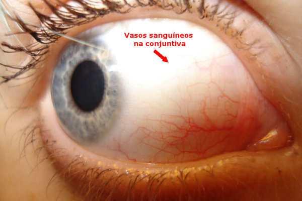 434765 conjuntiva Derrame no olho: o que fazer?