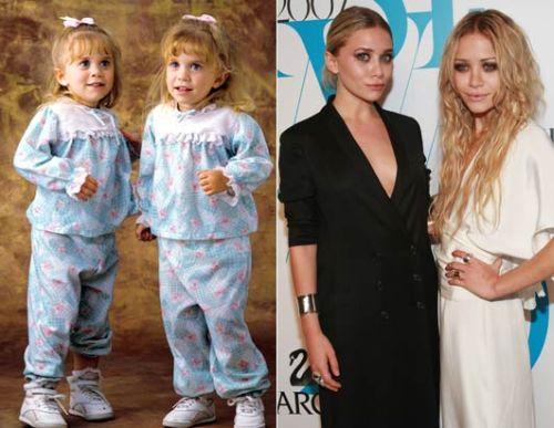 438316 o antes e o depois dos atores mirins fotos 15 O antes e o depois dos atores mirins: fotos