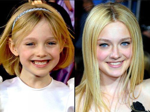 438316 o antes e o depois dos atores mirins fotos O antes e o depois dos atores mirins: fotos