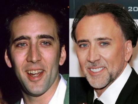 445579 Aparelho ortodôntico antes e depois fotos 5 Aparelho ortodôntico, antes e depois – fotos