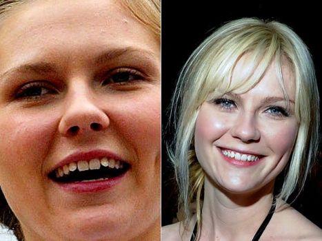 445579 Aparelho ortodôntico antes e depois fotos 9 Aparelho ortodôntico, antes e depois – fotos