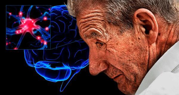 446115 Parkinson 1 Primeiros sinais do Mal de Parkinson