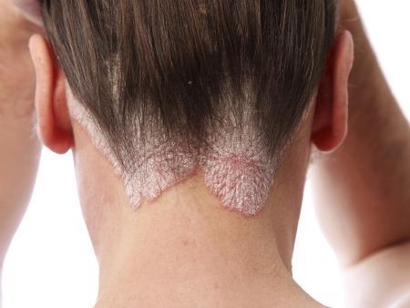 456379 O que é psoríase Psoríase: sintomas e tratamento