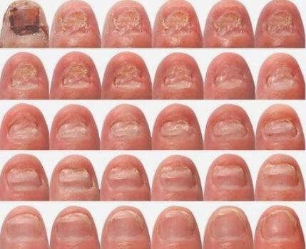 457262 onicomicose tratamento Micose de unha: como curar