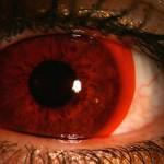 459683 Lentes de contato diferentes exóticas 05 150x150 Lentes de contato diferentes, exóticas: fotos