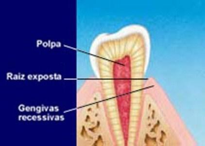 468172 A causa mais frequente da sensibilidade é a exposição da raiz dos dentes Sensibilidade nos dentes, como tratar