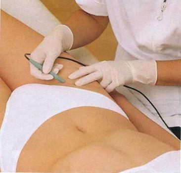 469282 A depilação a laser é um excelente metodo para evitar as manchas na virilha Manchas na virilha: como clarear