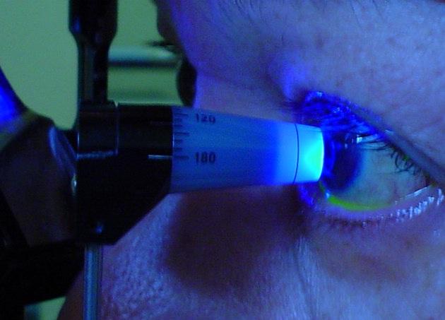 476341 Press%C3%A3o ocular alta sintomas 2 Pressão ocular alta: sintomas
