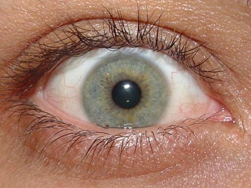 476341 Press%C3%A3o ocular alta sintomas 4 Pressão ocular alta: sintomas