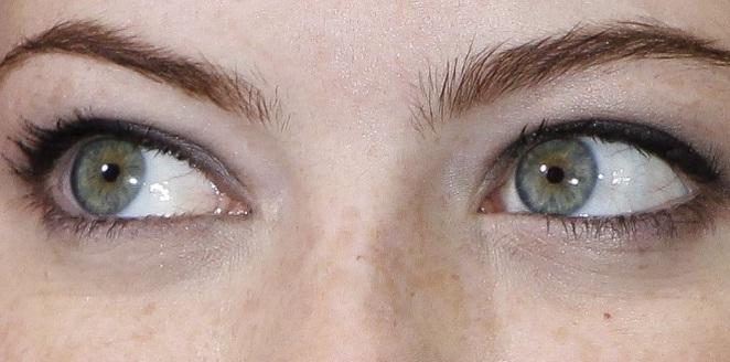 476341 Press%C3%A3o ocular alta sintomas Pressão ocular alta: sintomas