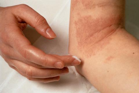 479697 Dermatite eczema Alergia a produtos de limpeza