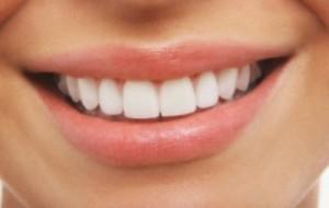 Hidratante caseiro para os lábios: receita