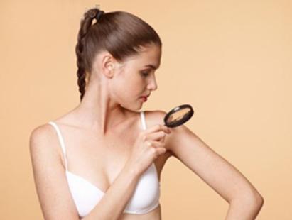480460 O autoexame permite o diagnóstico precoce do problema Câncer de pele: tipos, sintomas